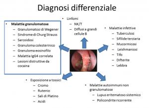 Malattie rare del naso e dei seni paranasali prof for Seni diversi